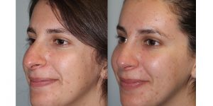 Rhinoplasty-Steven-Daines-MD-Appearance-Center-Newport-Beach-Orange-County-Plastic-Surgery5.3