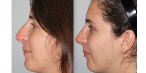 Rhinoplasty-Steven-Daines-MD-Appearance-Center-Newport-Beach-Orange-County-Plastic-Surgery5.4