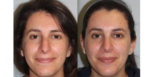Rhinoplasty-Steven-Daines-MD-Appearance-Center-Newport-Beach-Orange-County-Plastic-Surgery5.5