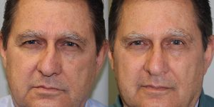 Rhinoplasty-Steven-Daines-MD-Appearance-Center-Newport-Beach-Orange-County-Plastic-Surgery9.1