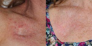 Skin-Cancer-And-Reconstructive-Surgery-Center-Skin-Cancer-Body (5)