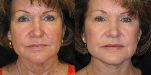 Facelift-Appearance-Center-Newport-Beach-Cosmetic-Surgery-Orange-County2