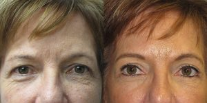 Before-And-After-Eyelid-Surgery-Appearance-Center-Newport-Beach-Orange-County