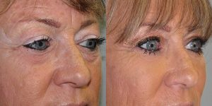 Before-And-After-Eyelid-Surgery-Appearance-Center-Newport-Beach-Orange-County10