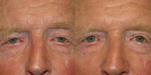 Before-And-After-Eyelid-Surgery-Appearance-Center-Newport-Beach-Orange-County15