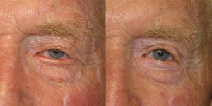 Before-And-After-Eyelid-Surgery-Appearance-Center-Newport-Beach-Orange-County16