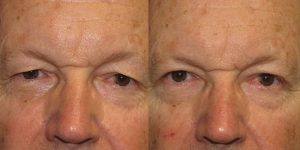 Before-And-After-Eyelid-Surgery-Appearance-Center-Newport-Beach-Orange-County17