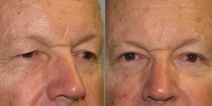 Before-And-After-Eyelid-Surgery-Appearance-Center-Newport-Beach-Orange-County18