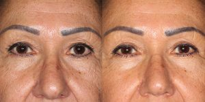 Before-And-After-Eyelid-Surgery-Appearance-Center-Newport-Beach-Orange-County19