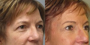 Before-And-After-Eyelid-Surgery-Appearance-Center-Newport-Beach-Orange-County2