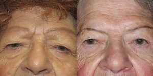 Before-And-After-Eyelid-Surgery-Appearance-Center-Newport-Beach-Orange-County3