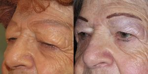 Before-And-After-Eyelid-Surgery-Appearance-Center-Newport-Beach-Orange-County4