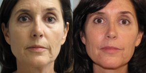 Before-And-After-Eyelid-Surgery-Appearance-Center-Newport-Beach-Orange-County5