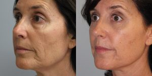 Before-And-After-Eyelid-Surgery-Appearance-Center-Newport-Beach-Orange-County6