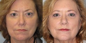 Before-And-After-Eyelid-Surgery-Appearance-Center-Newport-Beach-Orange-County7