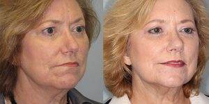 Before-And-After-Eyelid-Surgery-Appearance-Center-Newport-Beach-Orange-County8
