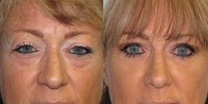 Before-And-After-Eyelid-Surgery-Appearance-Center-Newport-Beach-Orange-County9