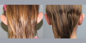 Ear-Correction-Appearance-Center-of-Newport-Beach-Plastic-Surery-Orange-County2