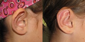 Ear-Correction-Appearance-Center-of-Newport-Beach-Plastic-Surery-Orange-County3