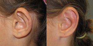 Ear-Correction-Appearance-Center-of-Newport-Beach-Plastic-Surery-Orange-County4