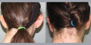 Ear-Correction-Appearance-Center-of-Newport-Beach-Plastic-Surery-Orange-County5