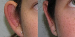 Ear-Correction-Appearance-Center-of-Newport-Beach-Plastic-Surery-Orange-County6