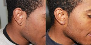 Ear-Correction-Appearance-Center-of-Newport-Beach-Plastic-Surgery-Orange-County11