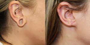 Ear-Correction-Appearance-Center-of-Newport-Beach-Plastic-Surgery-Orange-County13