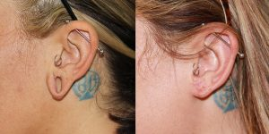 Ear-Correction-Appearance-Center-of-Newport-Beach-Plastic-Surgery-Orange-County143