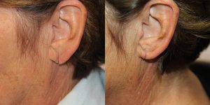 Ear-Correction-Appearance-Center-of-Newport-Beach-Plastic-Surgery-Orange-County15