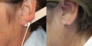 Ear-Correction-Appearance-Center-of-Newport-Beach-Plastic-Surgery-Orange-County16