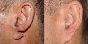 Ear-Correction-Appearance-Center-of-Newport-Beach-Plastic-Surgery-Orange-County17