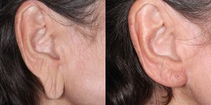 Ear-Correction-Appearance-Center-of-Newport-Beach-Plastic-Surgery-Orange-County19