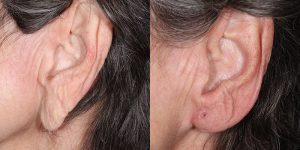 Ear-Correction-Appearance-Center-of-Newport-Beach-Plastic-Surgery-Orange-County20