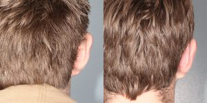 Ear-Correction-Appearance-Center-of-Newport-Beach-Plastic-Surgery-Orange-County7