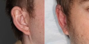 Ear-Correction-Appearance-Center-of-Newport-Beach-Plastic-Surgery-Orange-County8
