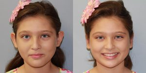Ear-Correction-Appearance-Center-of-Newport-Beach-Plastic-Surgery-Orange-County9