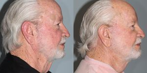 Facelift-Appearance-Center-Newport-Beach-Cosmetic-Surgery-Orange-County