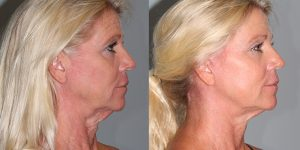 Facelift-Appearance-Center-Newport-Beach-Cosmetic-Surgery-Orange-County3