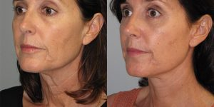 Facelift-Appearance-Center-Newport-Beach-Cosmetic-Surgery-Orange-County4 (1)