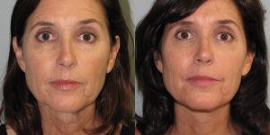 Facelift-Appearance-Center-Newport-Beach-Cosmetic-Surgery-Orange-County4 (2)