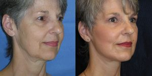 Facelift-Appearance-Center-Newport-Beach-Cosmetic-Surgery-Orange-County6 (1)