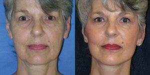 Facelift-Appearance-Center-Newport-Beach-Cosmetic-Surgery-Orange-County6 (6)