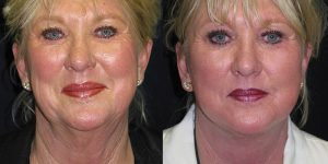 Neck-lift-Appearance-Center-Newport-Beach-Cosmetic-Surgery-Orange-County2.1