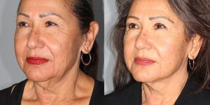 Neck-lift-Appearance-Center-Newport-Beach-Cosmetic-Surgery-Orange-County6.1