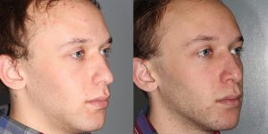 Nose-rhinoplasty-Simon-Madorsky-MD-Appearance-Center-Newport-Beach-Orange-County2 - Copy