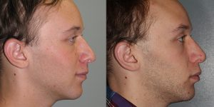 Nose-rhinoplasty-Simon-Madorsky-MD-Appearance-Center-Newport-Beach-Orange-County3 - Copy