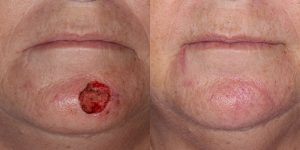 Reconstructive-Surgery-Appearance-Center-Skin-Cancer-Aftercare