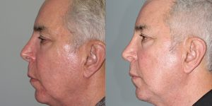 Rhinoplasty-Simon-Madorsky-MD-Appearance-Center-Cosmetic-Surgery2 - Copy