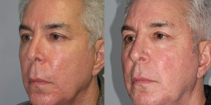 Rhinoplasty-Simon-Madorsky-MD-Appearance-Center-Cosmetic-Surgery3 - Copy